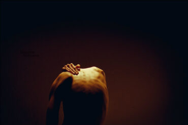 psychological stress or distress