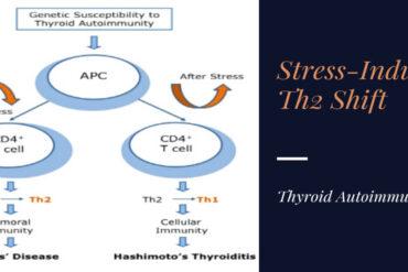 stress thyroid