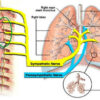 Neuroendocrine-immune interactions in lung