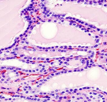 hyperthyroidism autoimmunity