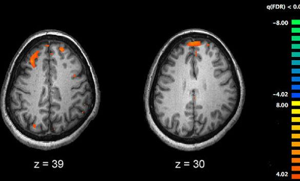 schizophrenia and prenatal immune challenge