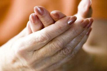 estrogen protection in arthritis