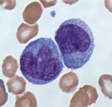 monocytes and stress