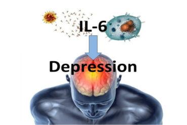 Cerebrospinal Fluid IL-6 Depressive Symptoms