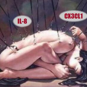 CX3CL1 and IL-8 Fibromyalgia