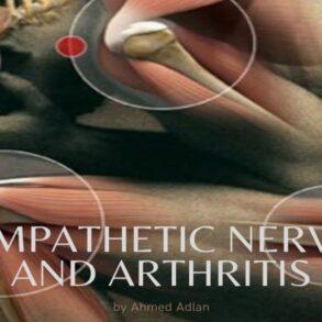 Dysfunction in Rheumatoid Arthritis