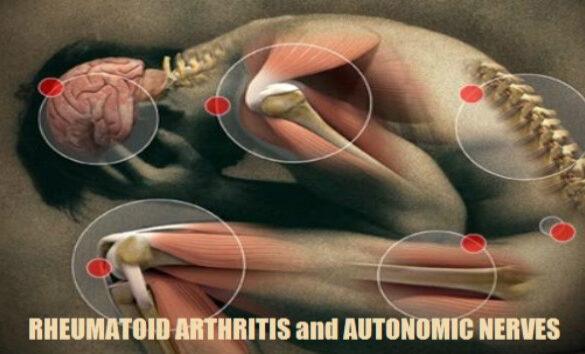 Sympathetic System Dysfunction Rheumatoid Arthritis