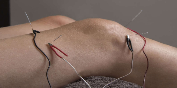electroacupuncture affects immunity