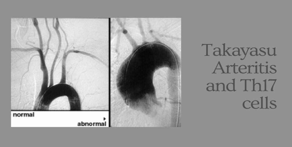 Glucocorticoid Resistance of Th17 Cells in Takayasu Arteritis