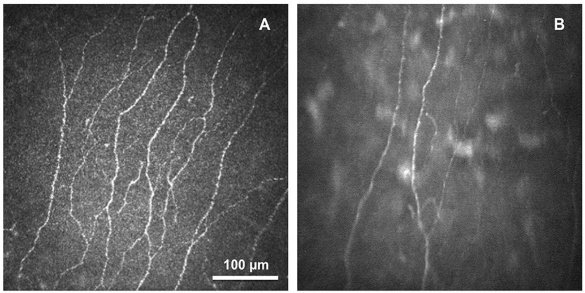 Small Fiber Neuropathy in the Cornea of Fibromyalgia Patients