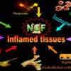 nerve growth factor and inflammation