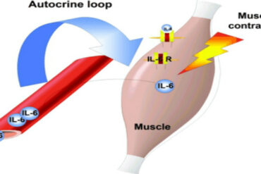 sarcopenia and aging