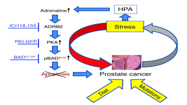 stress catecholamines and tumor