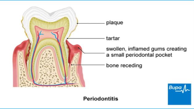 periodontitis and cognitive decline