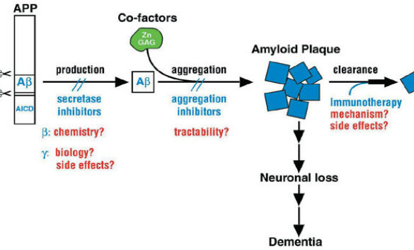Aducanumab shows promise in Alzheimer's