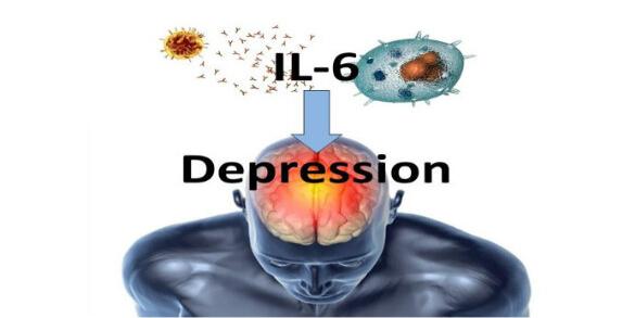 IL-6 and depression BrainImmune