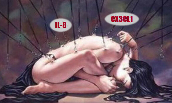 CX3CL1 and IL-8 Fibromyalgia