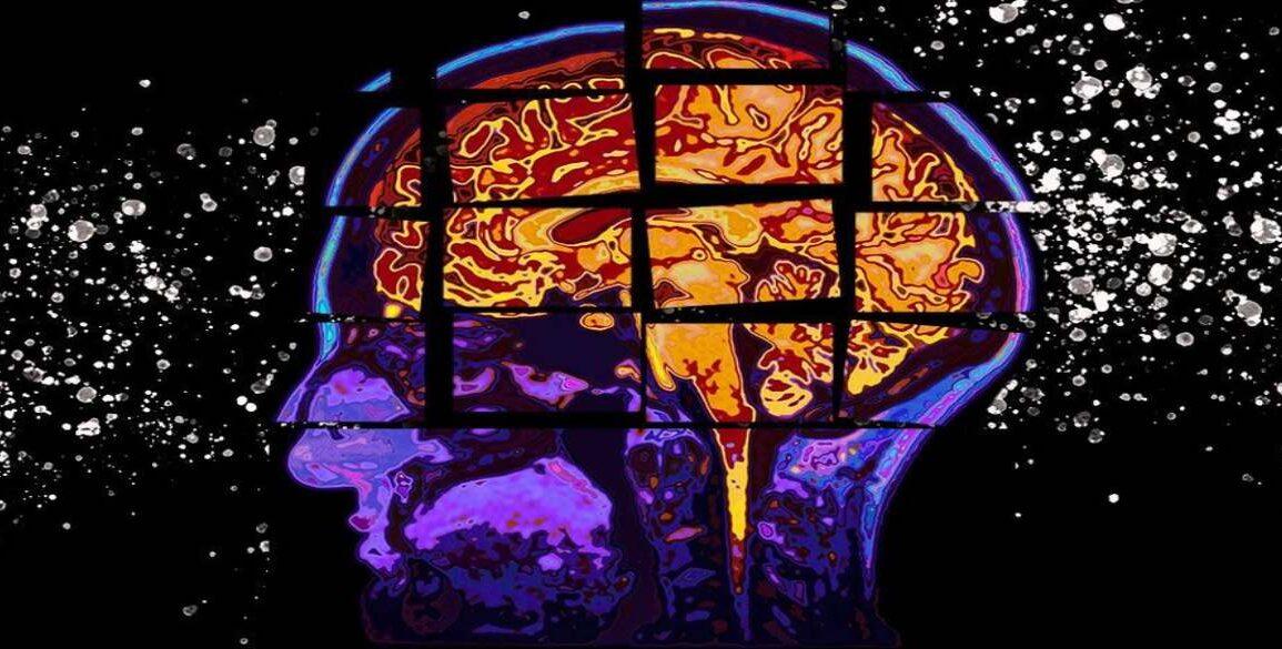 Cognitive Decline Alzheimer's