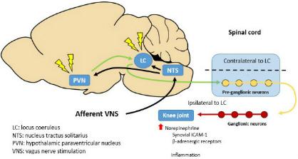 Vagus Nerve Stimulation Activates Brain Locus Coeruleus