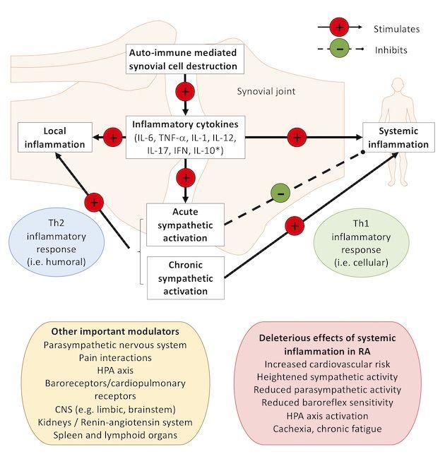 Sympathetic System Dysfunction Arthritis